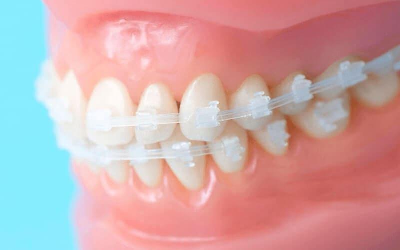 非抜歯の矯正を優先的に