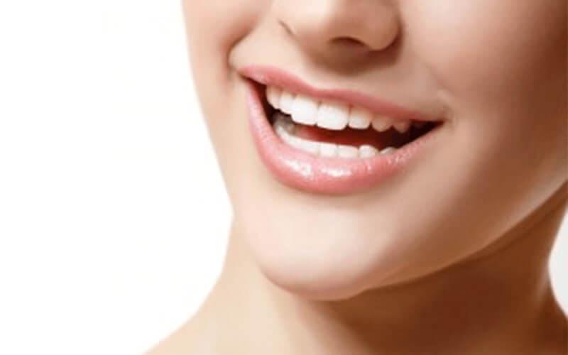 歯茎のラインまで美しく修復可能