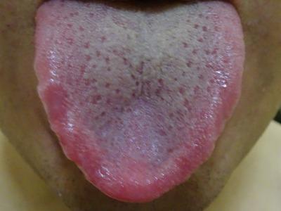 痛い 舌 が