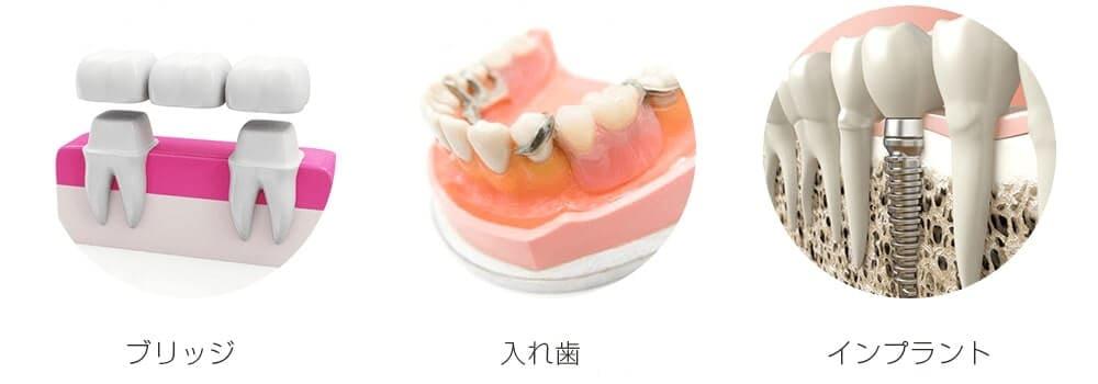 インプラント・入れ歯・ブリッジと3つの治療法