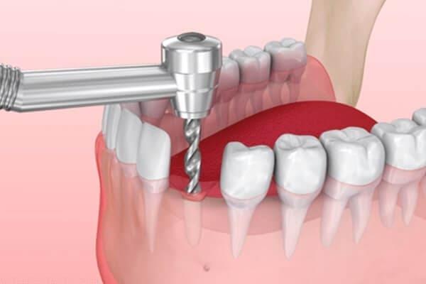 顎の骨に埋める手術